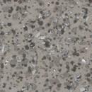 Линолеум коммерческий гетерогенный Acczent Pro 003 1,5 м